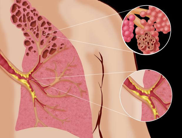Ablatietherapie voor COPD: effectief en veilig?