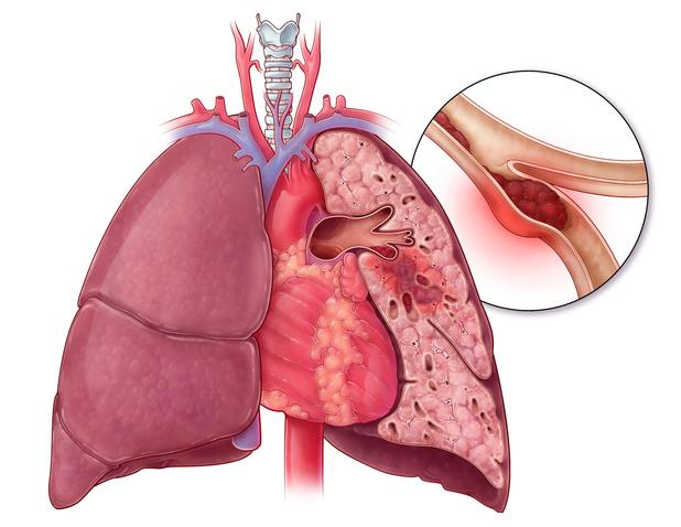 Le risque d'embolie pulmonaire peut rester élevé pendant plusieurs mois après une intervention chirurgicale