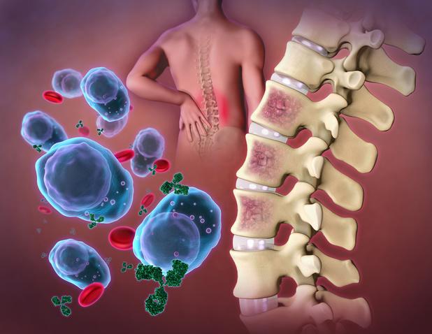 Hoe ver staat de immunotherapie bij MM?