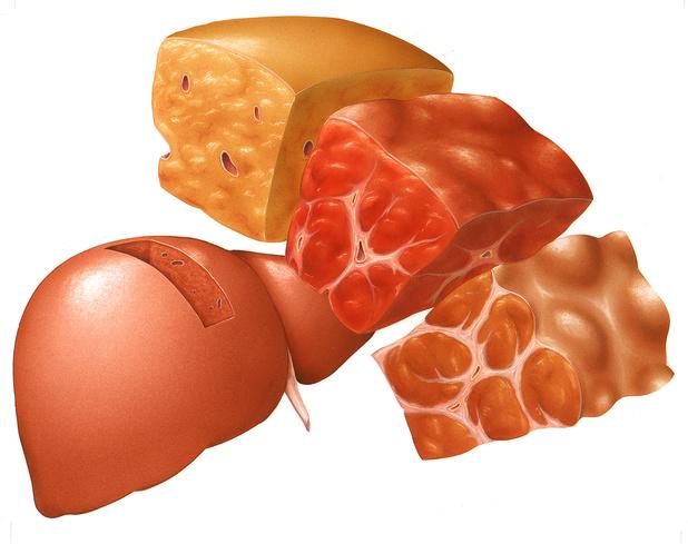 Niet-alcoholische steatohepatitis (NASH) en nut van obeticholzuur
