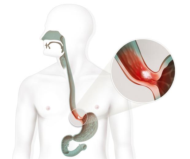 Dépister tôt le cancer de l'oesophage