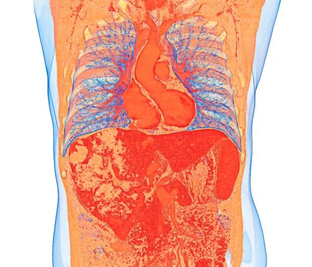 Carcinome hépatocellulaire inopérable : meilleure qualité de vie avec la radio-embolisation qu'avec le sorafénib