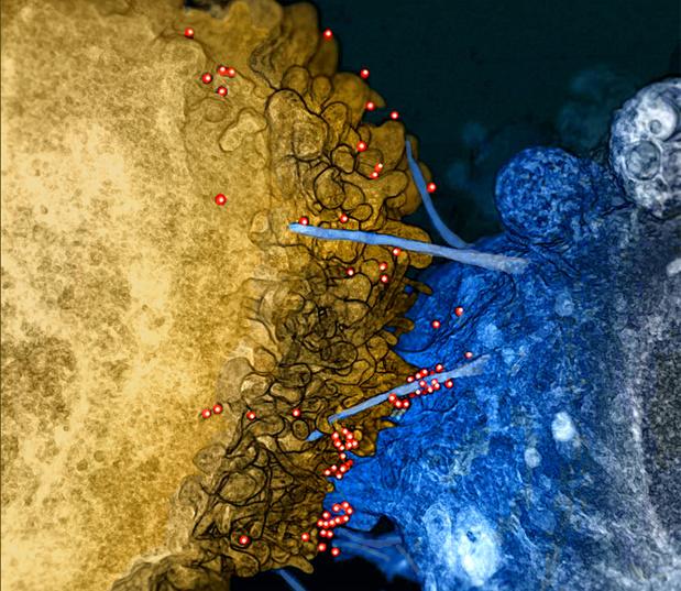 Evolution du ratio CD4:CD8 chez les patients VIH dépistés après 50 ans