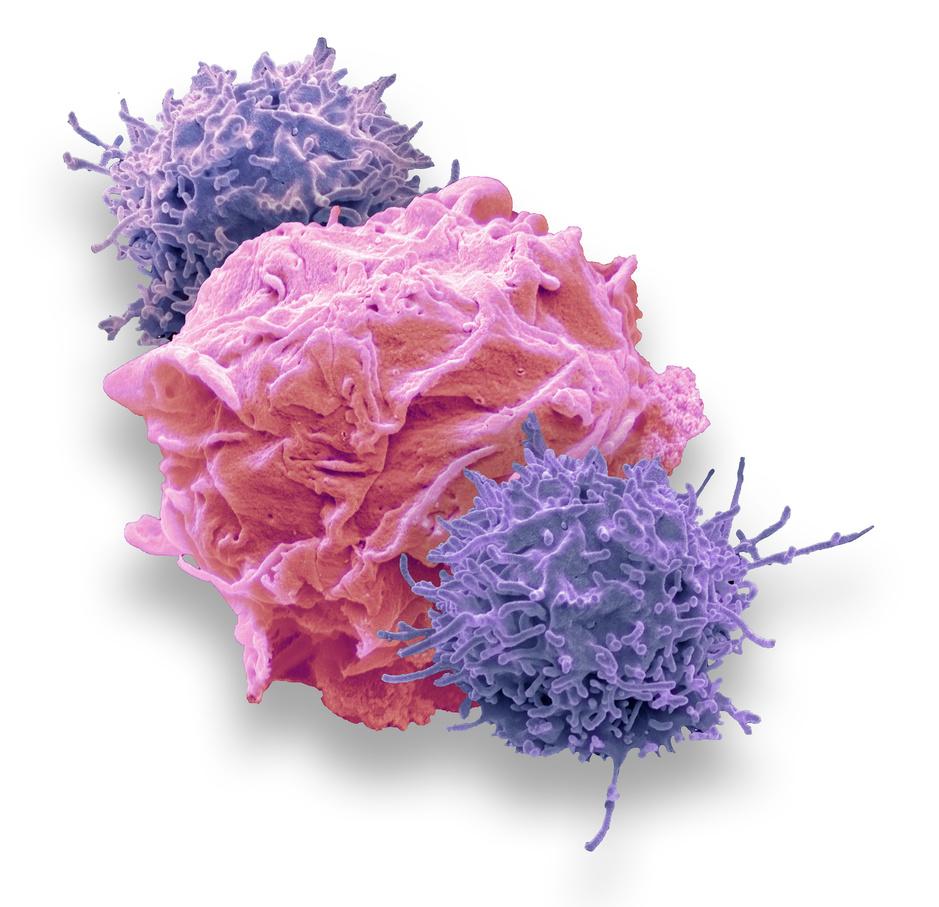 Pola : une nouvelle option pour les patients avec un lymphome diffus à grandes cellules B non traité