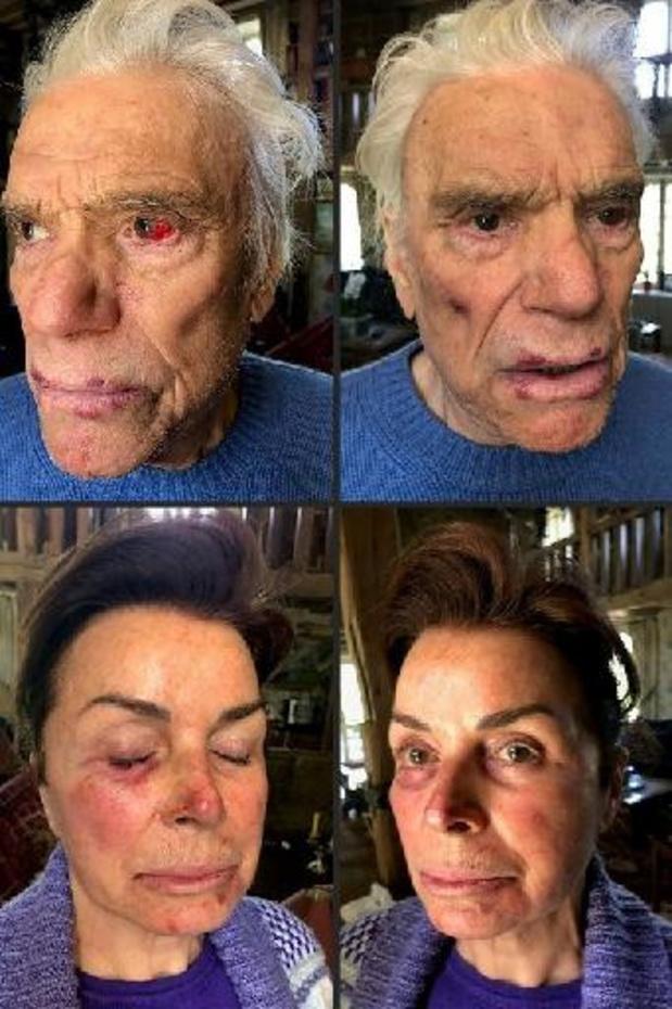 L'enquête sur le violent cambriolage du couple Tapie reprise par le parquet de Paris