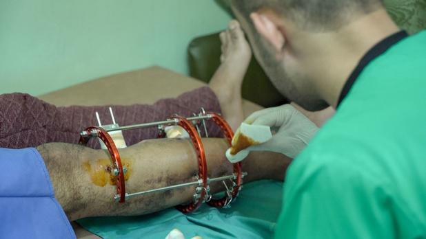 Gaza : Sauver des jambes, un acte de résistance humanitaire