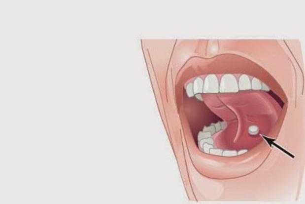 La vitamine D sous la langue