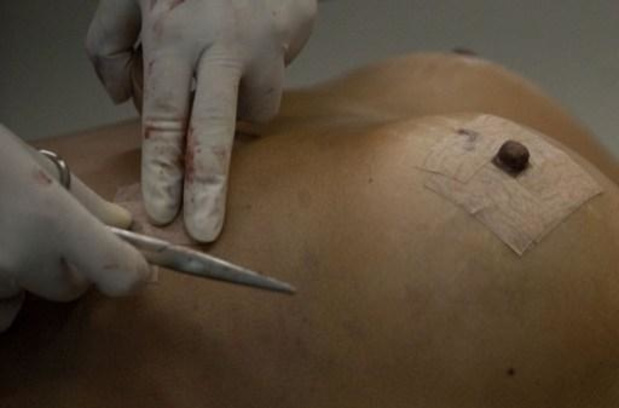 Centraal register implantaten op komst