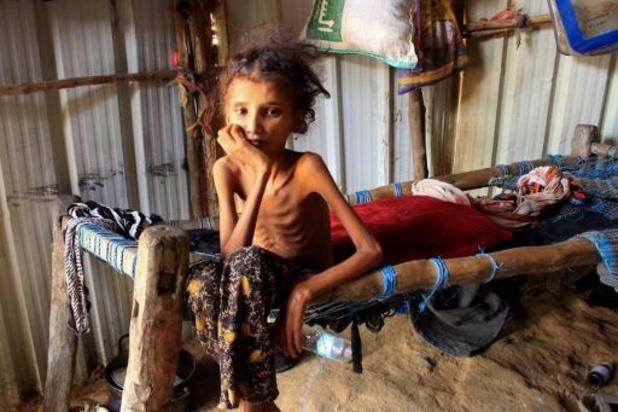 La moitié des enfants du Yémen vont souffrir de malnutrition en 2021
