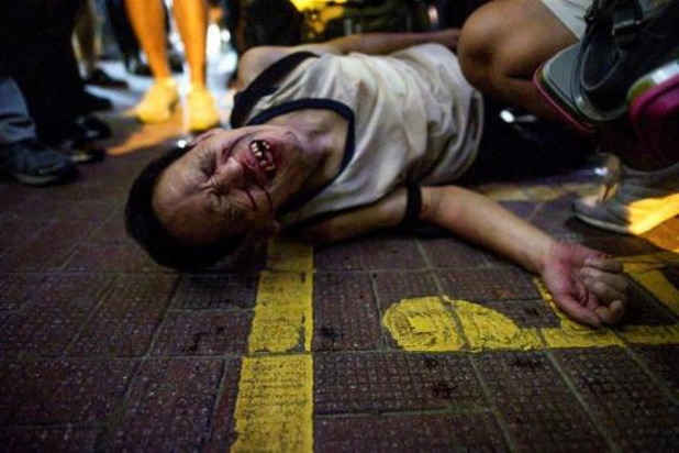 Politie Hongkong mishandelt en foltert demonstranten