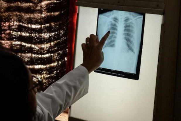Pandemie brengt vooruitgang in strijd tegen tuberculose in gevaar