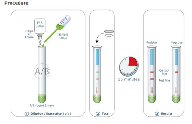 Un test belge détecte le SARS-CoV-2 en 15 minutes