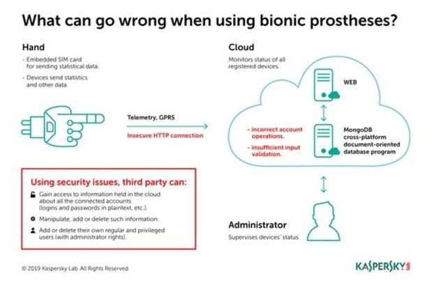 Le système en nuage pour les prothèses bioniques moins sûr qu'on ne le pensait