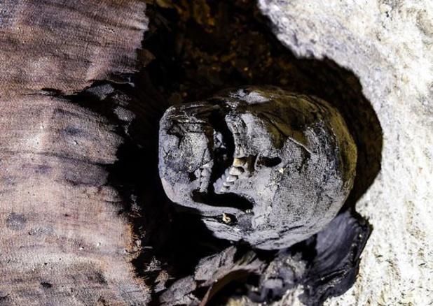 Découverte de traces de chirurgie dentaire sur une momie égyptienne