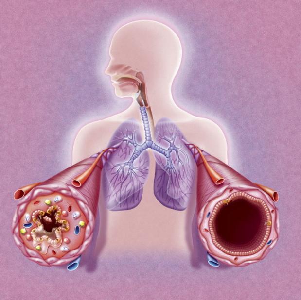 Een alternatief bij mild, persistent astma en lage eosinofielen