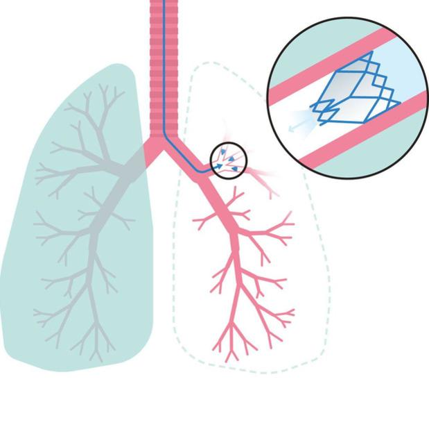 Retrouver son souffle grâce à des valves artificielles