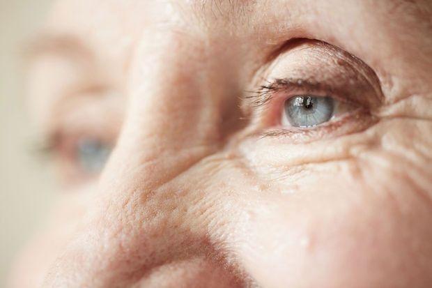 Comment empêcher la peau de vieillir? Des chercheurs sur la piste d'une protéine