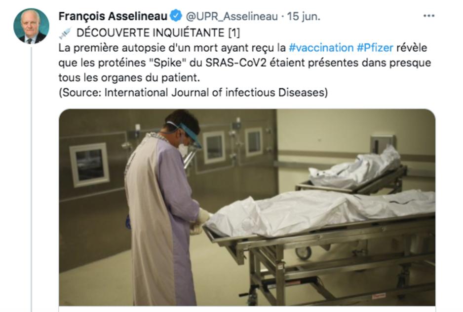 Factcheck: nee, autopsie toont geen verspreiding van spike-eiwitten in alle organen