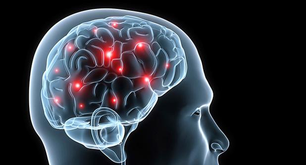 Epilepsie: een moleculaire signatuur om aanvallen te voorspellen