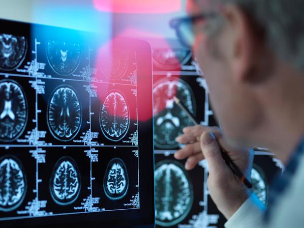 Alzheimerbehandeling op komst?