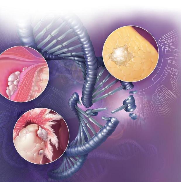 Zelfs na progressie blijft verdere toediening bevacizumab bij ovariumkanker zinvol