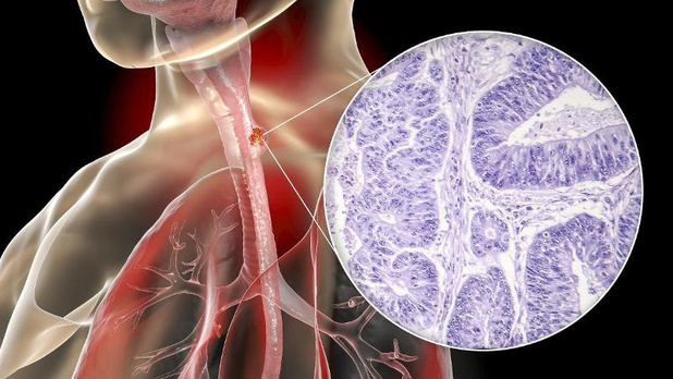 Toevoeging panitumumab aan cisplatine-fluorouracil verhoogt enkel nevenwerkingen