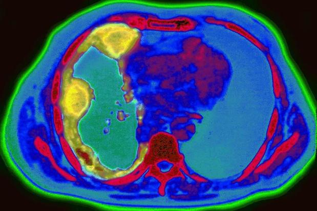 Radiotherapie nuttig bij chemo-chirurgische behandeling niet-gemetastaseerd maligne mesothelioom