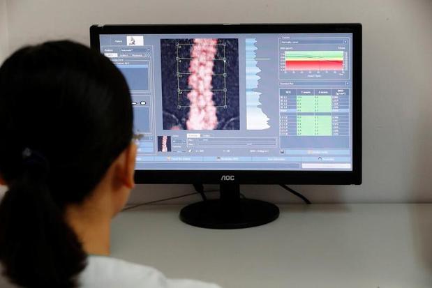 L'alendronate en traitement court pour prévenir la déminéralisation osseuse
