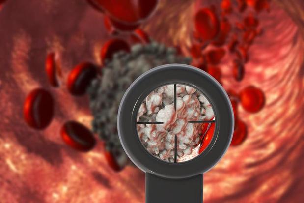 Envisager un traitement par selinexor est utile dans le cadre d'un SMD ou d'une LMA oligoblastique réfractaires