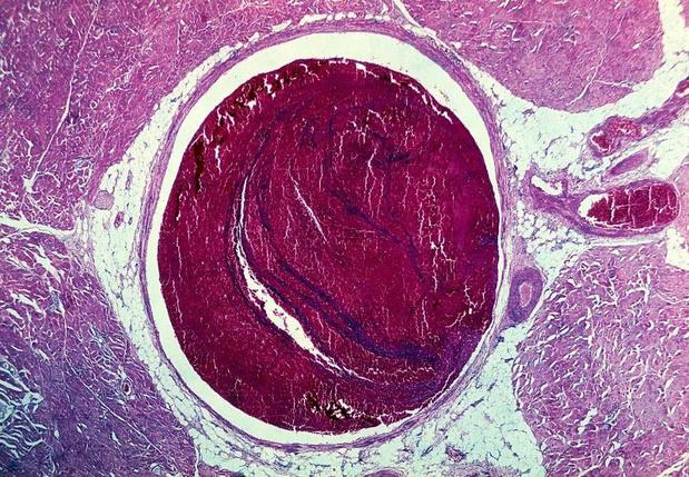 Recidief van veneuze trombo-embolie bij hiv-geïnfecteerde patiënten