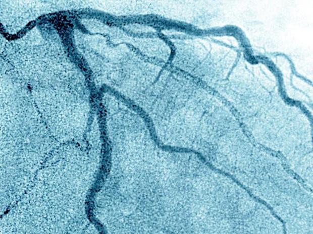 Het metabole fenotype bepaalt het cardiovasculaire risico