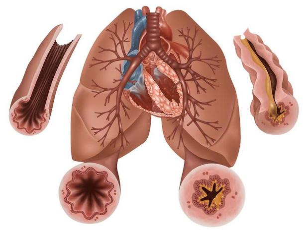 Nouvelles notions sur la cause de la viscosité du mucus en cas de maladies respiratoires