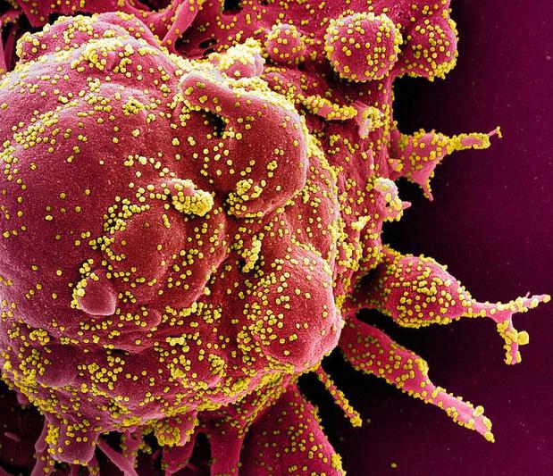 La Grande-Bretagne infecte des volontaires au coronavirus, une première mondiale