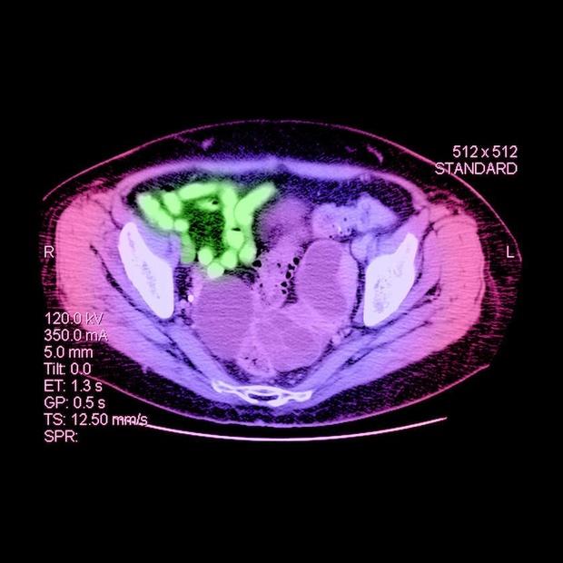 Onderhoudsbehandeling met olaparib te overwegen bij ovariumkanker