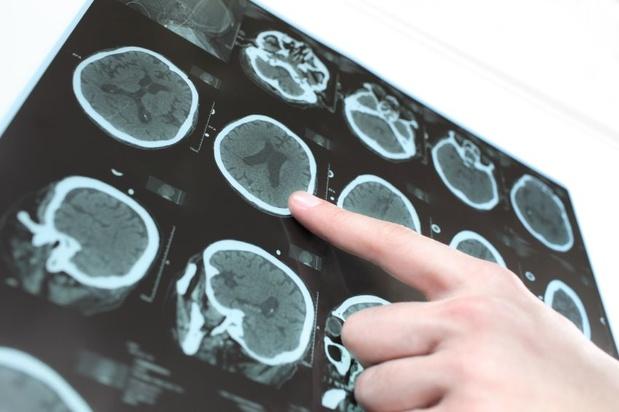 3,2 miljoen patiënten onderzocht: 900.000 mensen hebben een te hoge stralingsdosis
