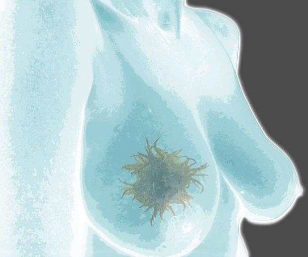 Bij borstkanker betekent het toevoegen van S-1 aan de endocriene therapie een meerwaarde