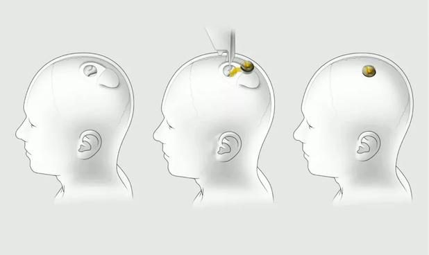 L'implant cérébral d'Elon Musk avance à pas de cochon