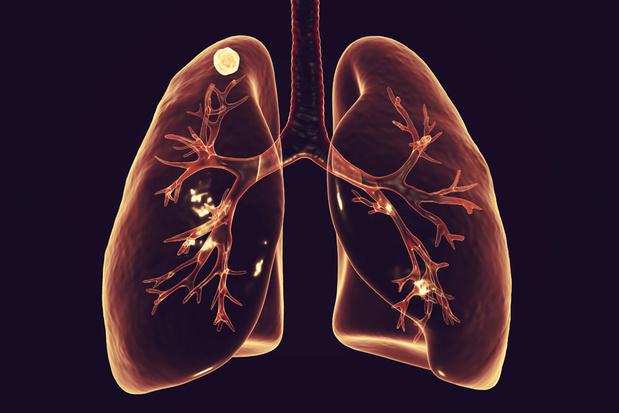 Middel tegen artritis kan ook tbc afremmen