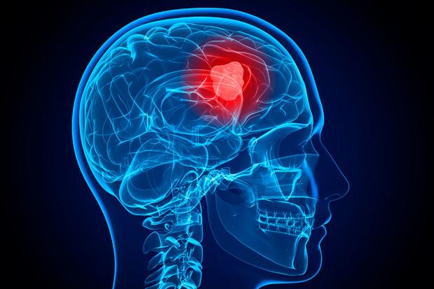 Agressieve hersentumor misbruikt onze biologische klok om te kunnen groeien