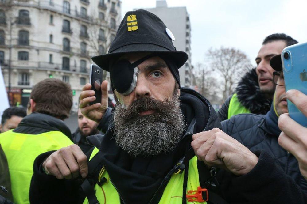 Jérôme Rodrigues, l'une des figures du mouvement des Gilets Jaunes, photographié ici le 2 février à Paris. Jérôme Rodrigues a perdu un oeil le 26 janvier, suite à un tir des forces de l'ordre., Getty Images