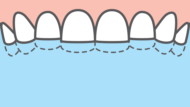 L'usure des dents, une des conséquences du bruxisme, Getty Images