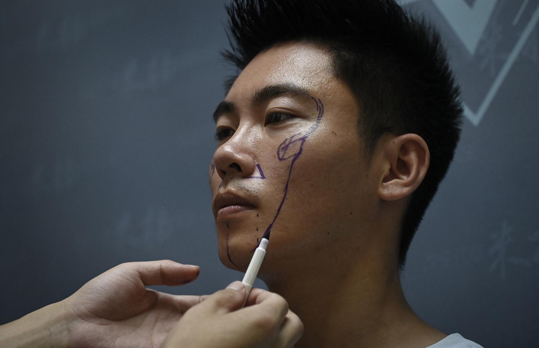 Dessin de l'intervention chirurgicale à venir pour Xia Shurong, AFP