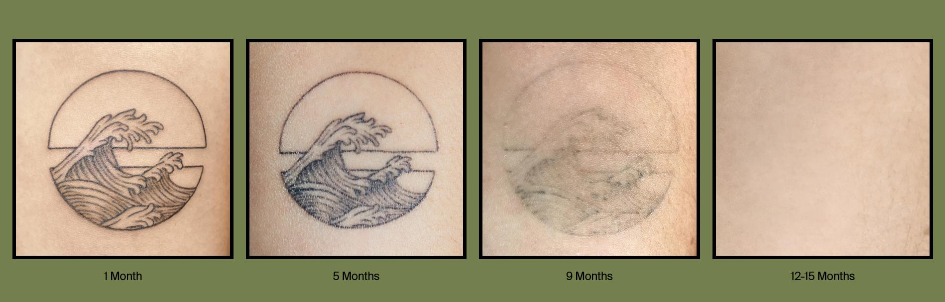 De inkt vervaagt na negen tot vijftien maanden., Ephemeral Tattoo