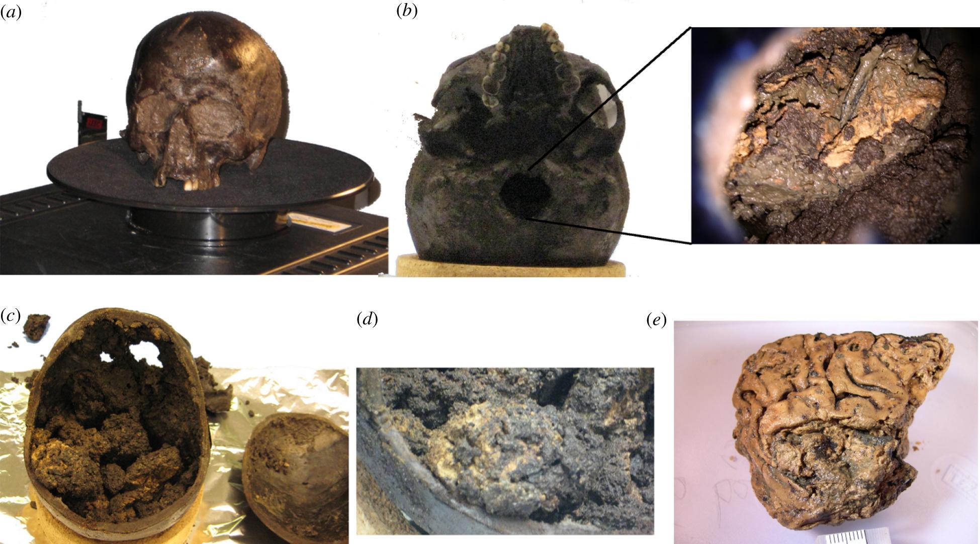 a) Les orifices étaient recouverts de boue - b) Intérieur du crâne via le trou occipital (os en bas du crâne) - c) Après ouverture du crâne, la structure recouverte de sédiments est demeurée intacte - d) Les structures ressemblent à un cerveau rétréci recouvert de sédiments boueux - e) Après nettoyage, découverte du gyrus du cerveau (ensemble de replis sinueux du cortex cérébral)., Axel Petzold, Ching-Hua Lu, Mike Groves, Johan Gobom, Henrik Zetterberg, Gerry Shaw and Sonia O'Connor