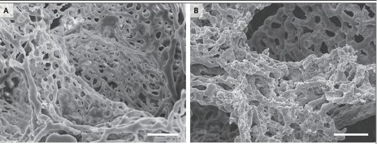 De kleinste bloedvaten van de long (capillairen). Links zie je normaal gevormde bloedvaten in een gezonde long. Rechts zie je de uitgesproken aantasting van de kleine bloedvaten in een met COVID-19 besmette long., UZ Leuven