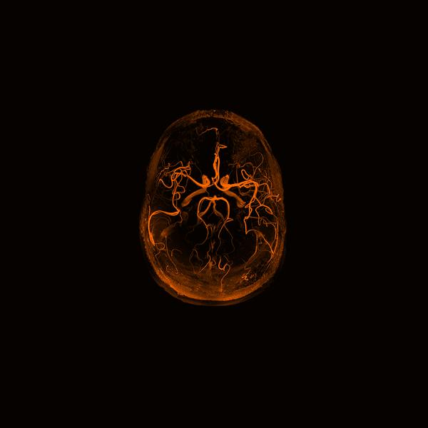 De doorbloeding van de hersenen, Siemens Healthineers